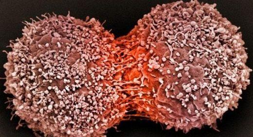 T Hücreli Lenfoma İlaçları Nelerdir?