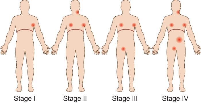 Lenfoma Türleri