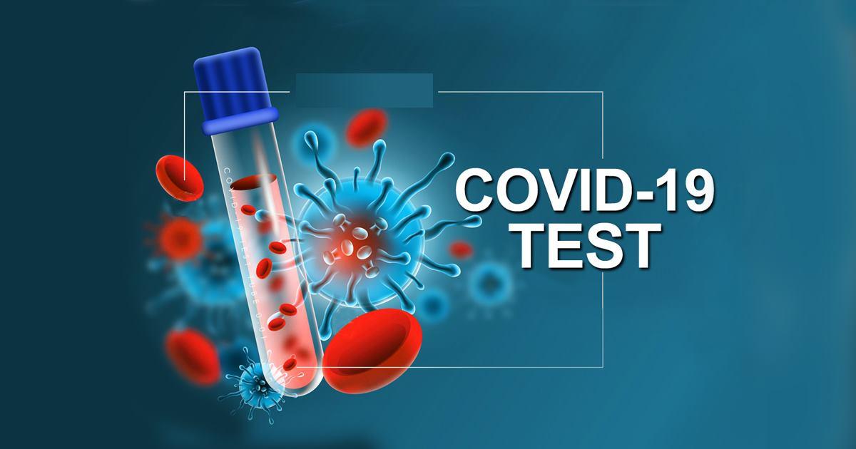 कोरोना अपडेटः संक्रमितको १ सय २ पुग्यो, ३० जना निको(भिडियोसहित)