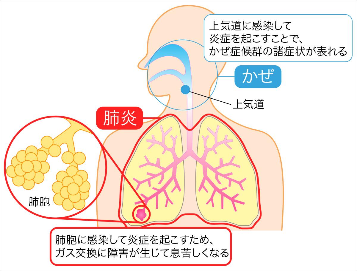 長引く乾いた咳! 黃色や緑の淡が出ているなら肺炎の疑いあり ...