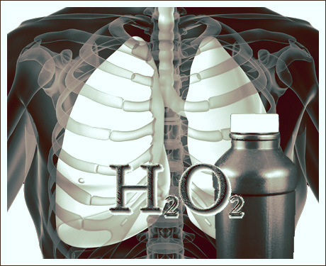 h2o2 Beat Cancer With 35% Hydrogen Peroxide Beat Cancer With 35% Hydrogen Peroxide h2o2