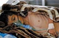 وفاة اثنين من المصابين بالكوليرا في مدينة مودية بأبين