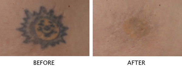 Laser Tattoo Removal Salmon Creek Plastic Surgery