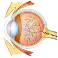 Glaucoma en el ojo