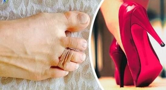 truco para evitar dolor de pies con tacones