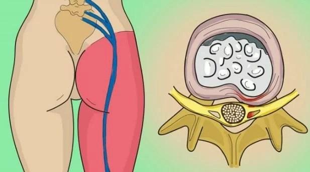 remedio casero para desinflamar el nervio ciatico