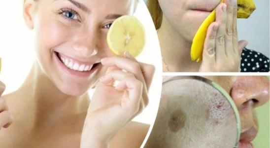 7 remedios caseros para quitar las manchas de la piel