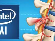 Intel y Brown University implementan inteligencia artificial para recuperar el movimiento
