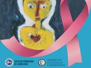 Sodocardio realizará simposio internacional sobre cardio-oncología en la mujer
