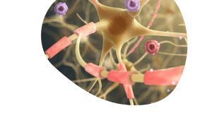 Esclerosis Múltiple en tiempos de pandemia