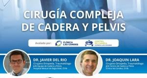 Sociedad Ortopedia y Traumatología viene con webinar sobre cirugía de cadera y pelvis