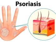 Psoriasis: Enfermedad que afecta física y emocionalmente a quienes la padecen