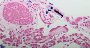 BMS recibe la opinión positiva del CHMP recomendando la aprobación de nivolumab más ipilimumab como tratamiento de primera línea para el mesotelioma pleural maligno irresecable