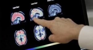 El 8% de la población dominicana mayor de 60 años padece algún tipo de demencia