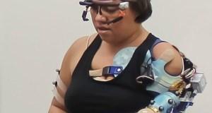 Brazo biónico recupera el control natural de los pacientes con amputaciones de miembros superiores