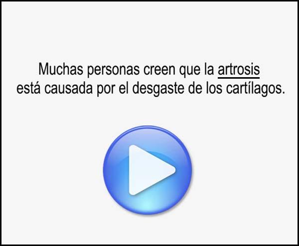 Artrosis: desgaste cartílagos