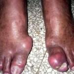 Artritis Gotosa (°.°) Síntomas y Tratamiento de la GOTA o Ácido Úrico
