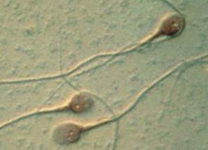la prostatitis causa un recuento bajo de espermatozoides