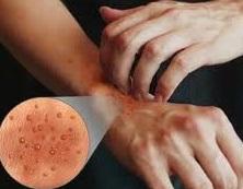 Dermatitis de Contacto: Que es y Como Tratarla