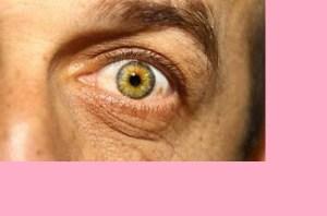 Herpes Ocular【 Síntomas y Tratamientos 】