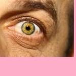 ¿Cómo Quitar las Bolsas de los Ojos? [Blefaroplastia]