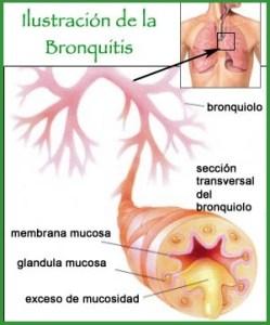 ¿Cómo Curar la Bronquitis de Manera Natural?