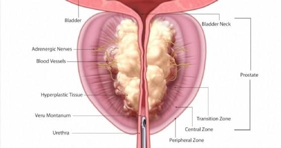 prostata ingrossata 1 5