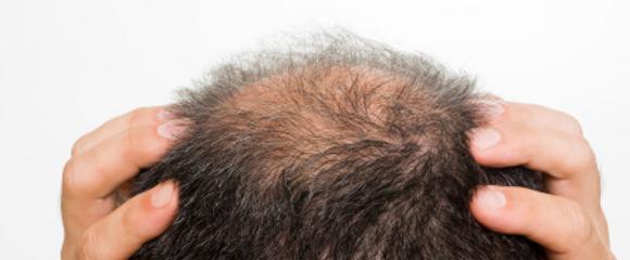 I capelli grigi che per fare rimedi di gente