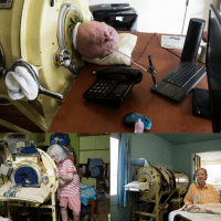 Last Polio Survivors in Iron Lungs Emphasize Importance of Vaccination