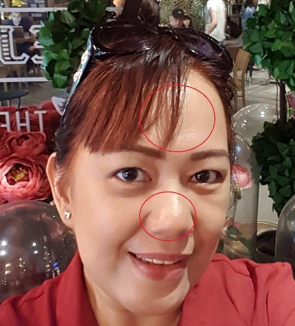 MOSP Philipines Skin Care Review Before Photo