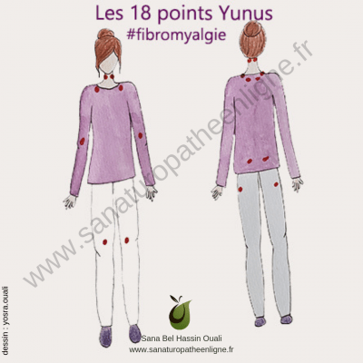 Points douloureux fibromyalgie