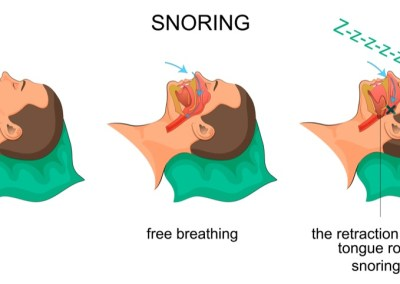 Snore Guards