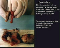 foto aborto omicidio
