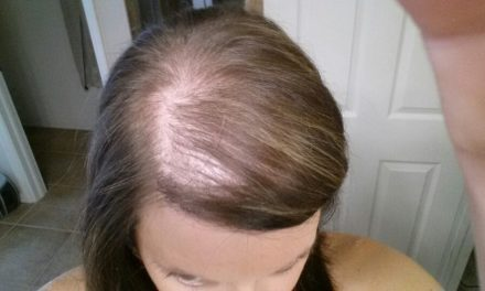 Hair Loss After Childbirth (Postpartum Hair Loss ) What principles to follow?