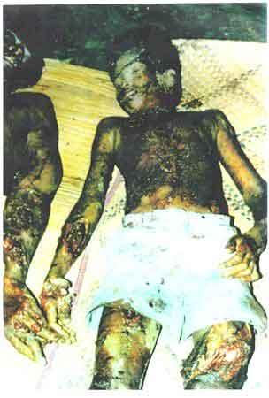Sri Lanka used Chemical Weapons on Tamils