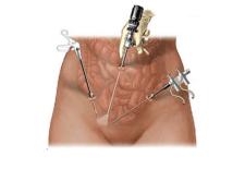Qué es la laparoscopia ginecológica