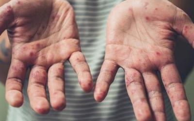 Minas Gerais entra para a lista de Estados com surto de sarampo