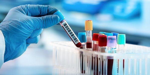 Após cancelamento, mais de 200 testes de coronavírus serão realizados em Itaúna