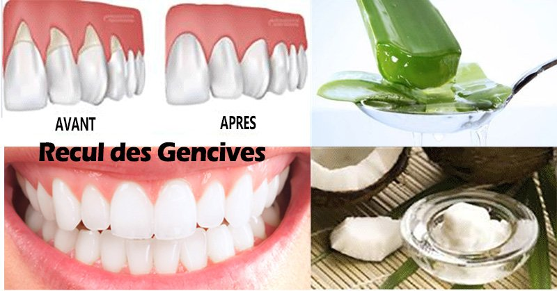 gencives