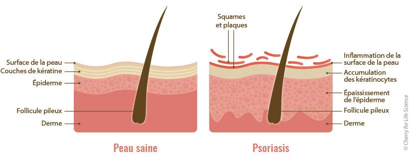 Psoriasis : Épidémiologie, Causes et facteurs de risque...