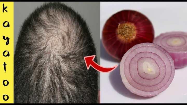 Comment utiliser le jus d'oignon pour lutter contre la chute des cheveux
