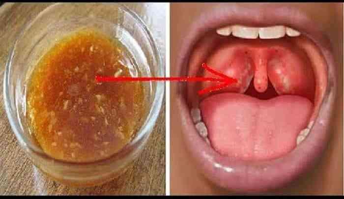 Angine: 32 remèdes maison pour se débarrasser des maux de gorge
