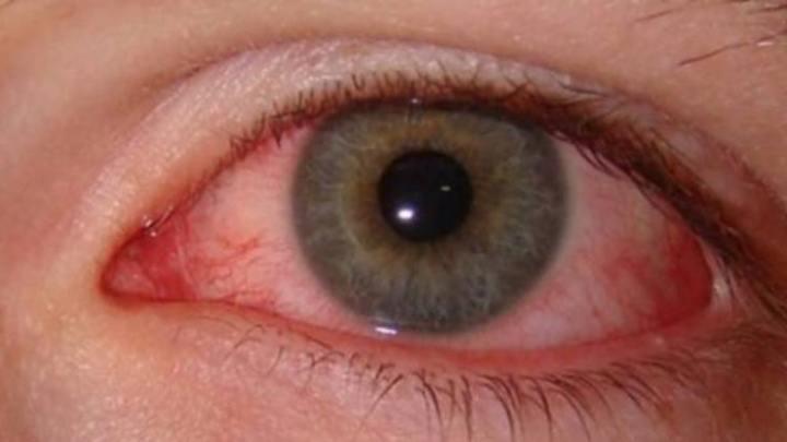 Comment se débarrasser de l'œil rose – 5 remèdes maison naturels