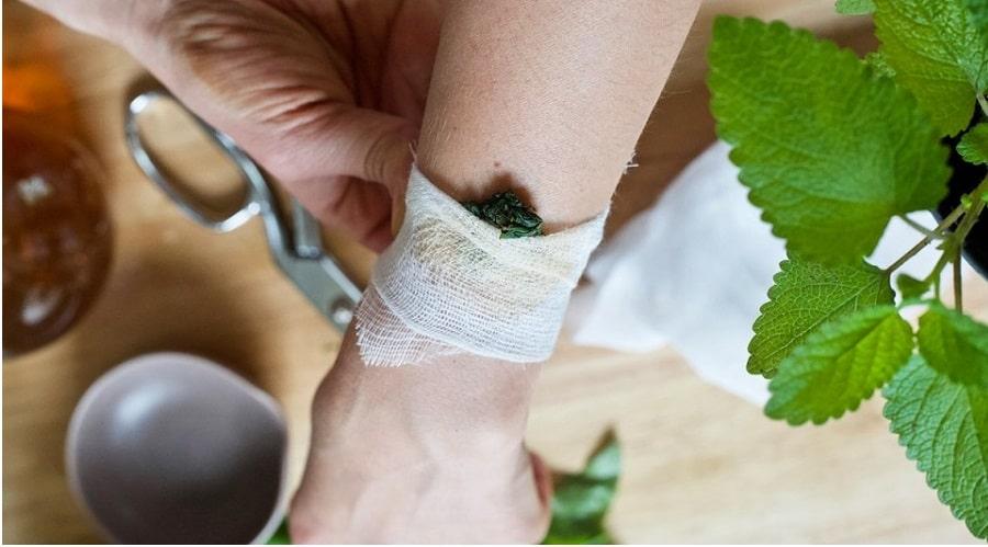 Plantes médicinales cataplasme pour la douleur