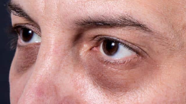 Que puis-je faire pour éviter les cernes sous les yeux?