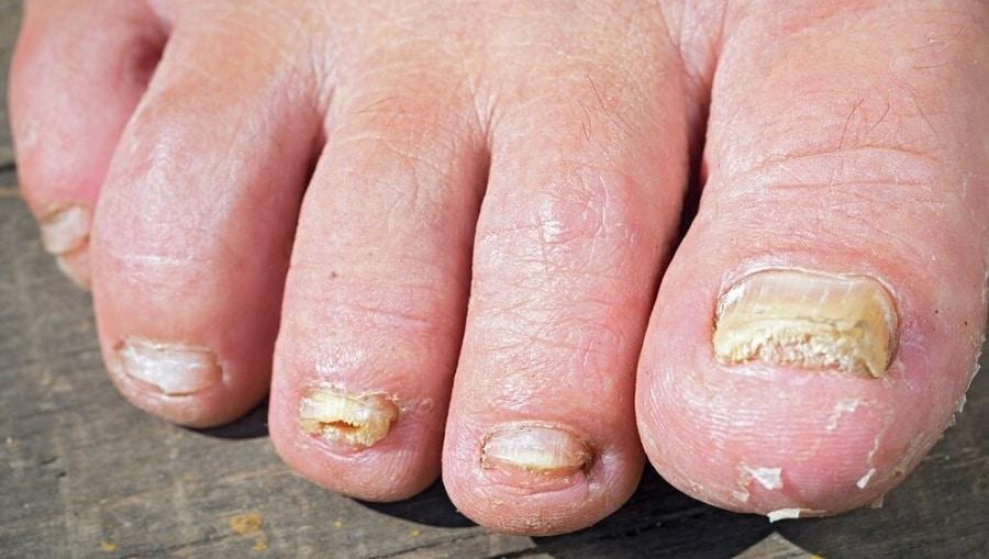 Remède à la maison pour le champignon des ongles des pieds qui fonctionne