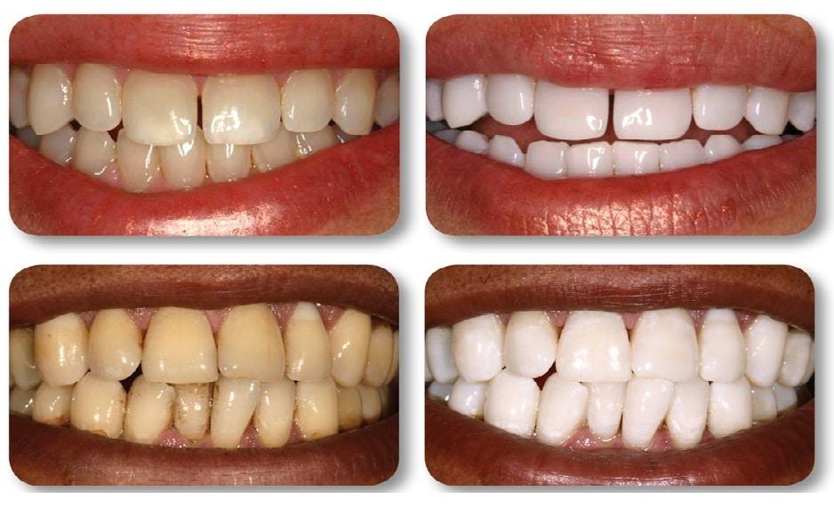 10 remèdes maison pour blanchir naturellement vos dents