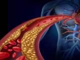 Comment réduire le mauvais cholestérol LDL naturellement