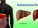 Remèdes à la maison pour l'hépatite auto-immune