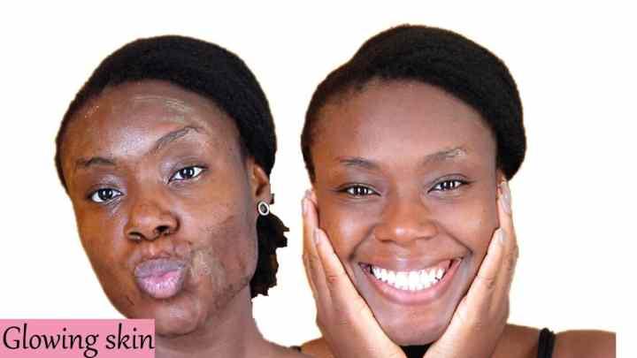15 remèdes maison pour la peau grasse et la production de sébum